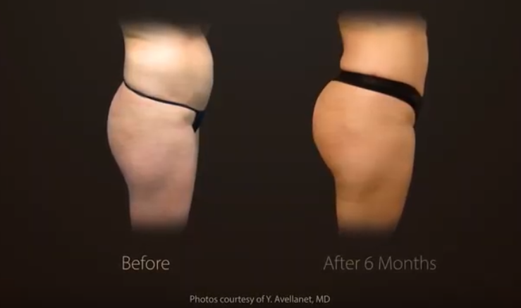 Buttock and Thigh Before and After