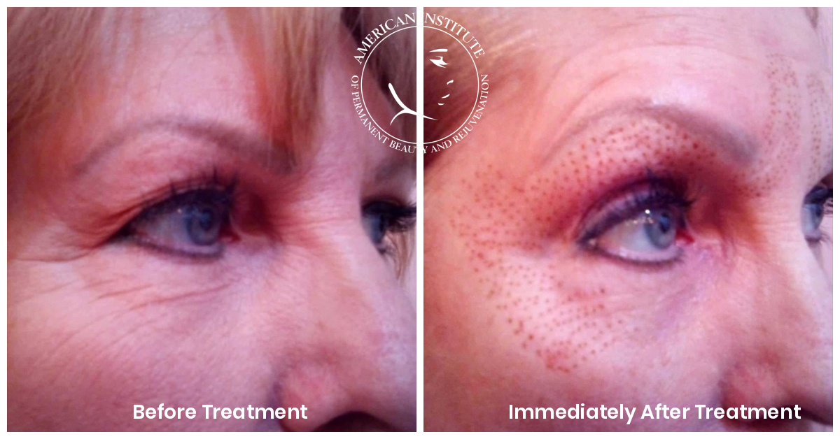FibroBlast Plasma Treatment Blepharoplasty