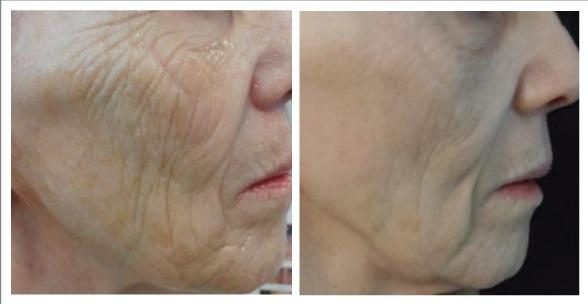 Skin Needling Before & After