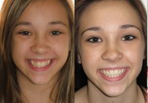 Before and After quality orthodontic treatment, mckinney orthodontics