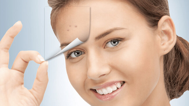 Best Acne Scars Treatment In Delhi Laser Acne Scar Removal Cost